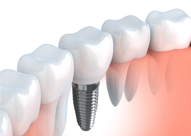 dental implant illustration link button